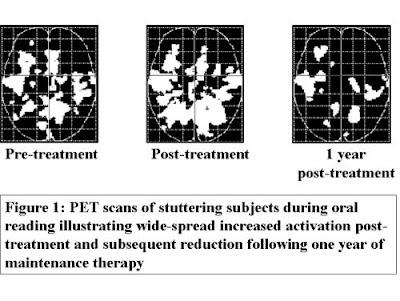 BALBUZIE-NEWS: PET cervello prima/dopo corsi cura balbuzie
