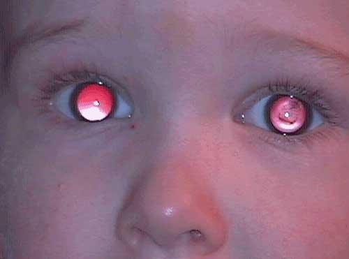 Medical Blog Retinoblastoma