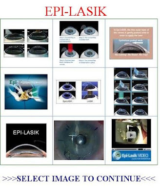 Epi-Lasik-Eye-Surgery