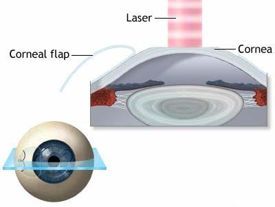 dry+eyes+post+lasik+Dry+Eye+Syndrome+After+Lasik+Eye+Surgery