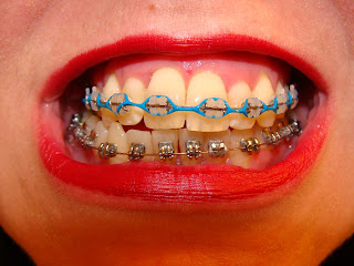 Braceface Clare S Amazing Journey Teal Powerchain And