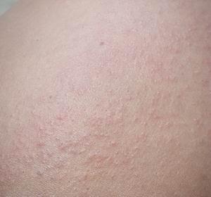 skin anjnai