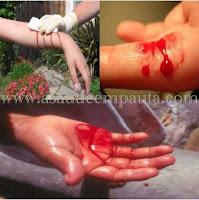 Primeiros socorros nos casos de ferimentos.