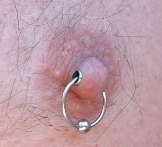 Techniques and Risks of Nipple Piercing
