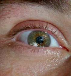 Olhos de Jack
