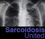 Sarcoidosis United