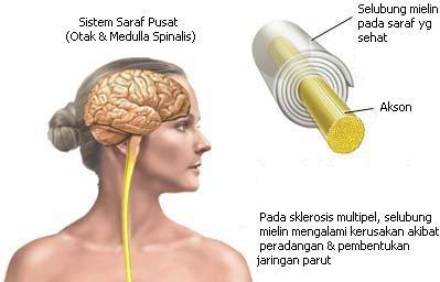sklerosis multipel