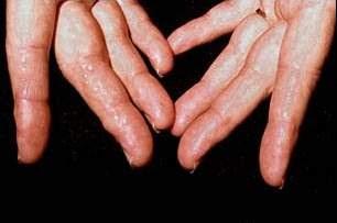 amiloidosis pada tangan