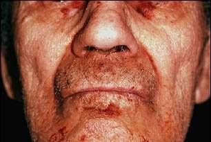 amiloidosis pada wajah