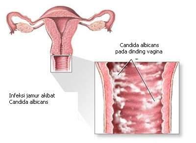 Kandidiasis genitalis