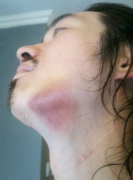 Living La Vida Rita: Bruised Jaw, Swollen Cheeks