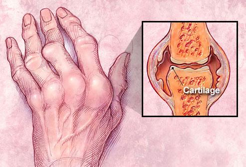 Rheumatoid arthritis skin problems