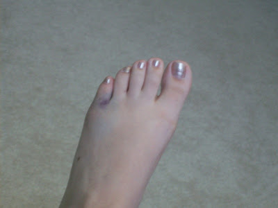 broken toe. This is what a roken toe