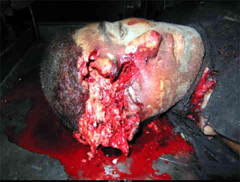 http://1.bp.blogspot.com/_SY5w_TauU1E/TEUerL8RJ5I/AAAAAAAABHU/PE0s6BmabJU/s1600/gaza_headshot.jpg