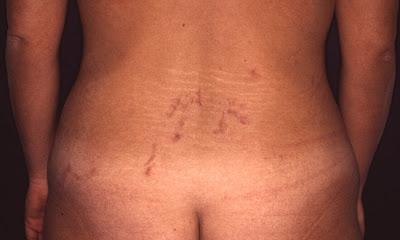 El tratamiento de la psoriasis de las dermatitis de la eccema