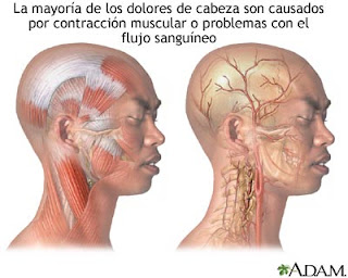 La cabeza mala a la osteocondrosis