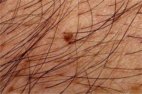 La piel no sorprendida a la psoriasis