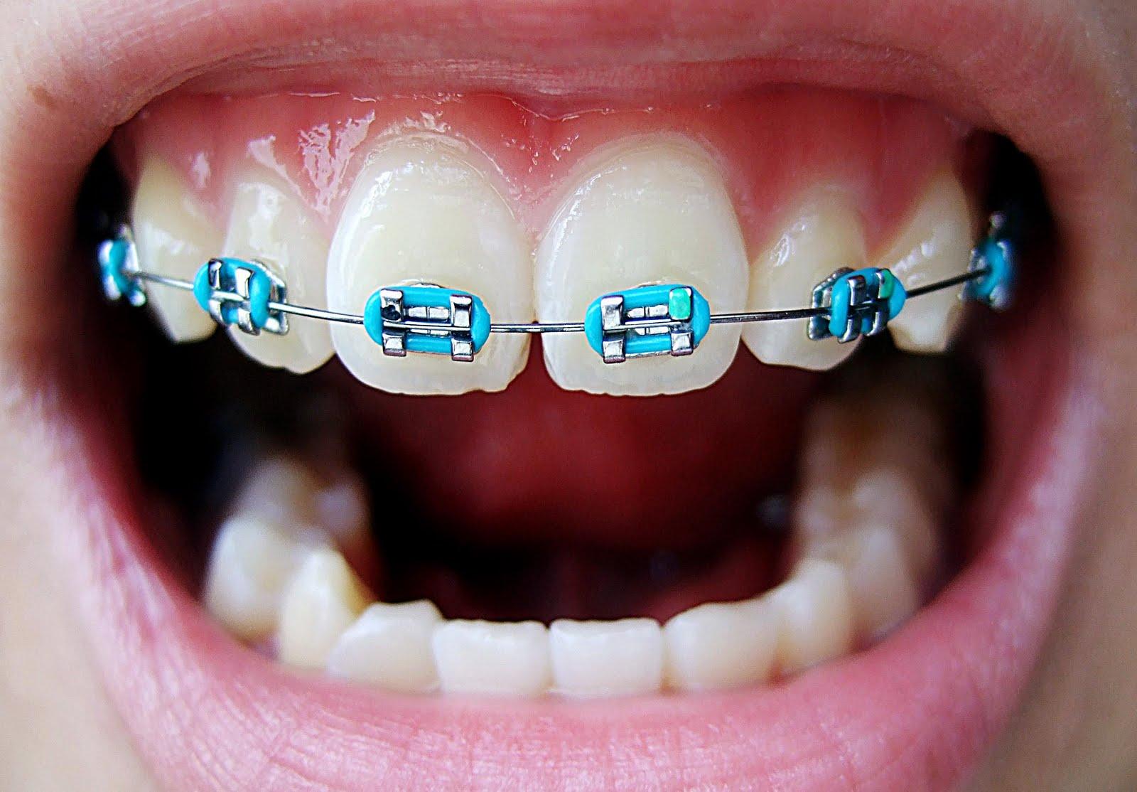 Braces For Teeth Design Color Metal Teeth Braces Colors