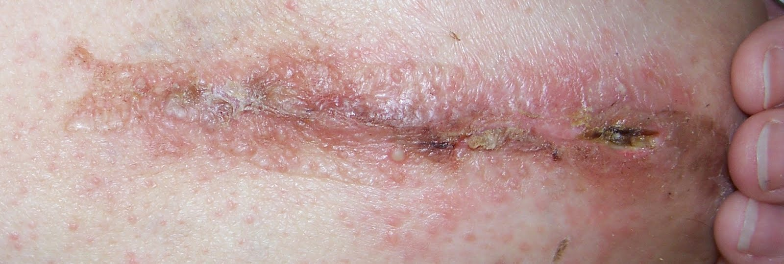 Surgical Incision Yeast Infection Guide