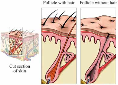 Hair Loss Alopecia on Hair Loss In Woman  Hair Loss Diagram