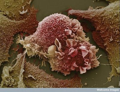 மனிதனின் அணுக்களின் முப்பரிமான படங்கள்..... Lung+cancer