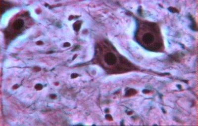 Microfotografías de células nerviosas