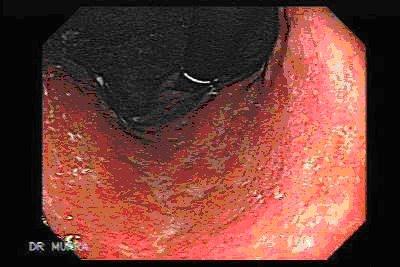 Gastritis crónica observada por endoscopía