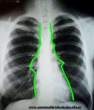 Mediastinolaca radiográfica donde se observa el mediastino, situado entre las líneas verdes
