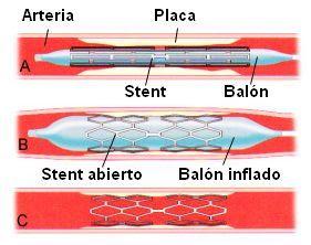 Colocación de un stent