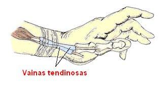 vainas tendinosas de la mano