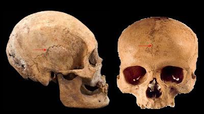 La unión de los huesos se produce por tejido fibroso. Las articulaciones de los huesos del cráneo y de la cara son ejemplos de suturas o sinostosis.