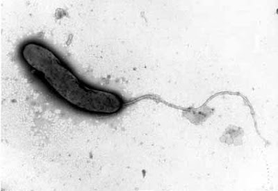 Microfotografía de Vibrio cholerae