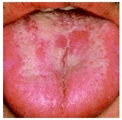 candidiasis mucosa