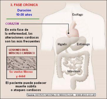 fase crónica del mal de Chagas