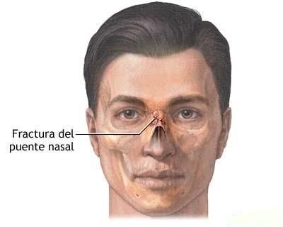 Fracturas del tabique nasal