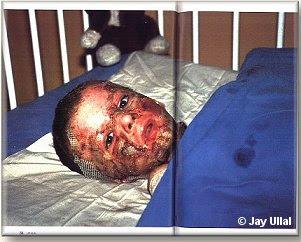 http://1.bp.blogspot.com/_TqlBOUgmQUo/RyxAWkI0NEI/AAAAAAAAGXw/UpUIgHpIEmk/s400/Kriegsopfer%2Bab.jpg