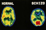 How the brain is affected