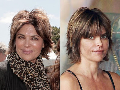 Lisa Rinna's Lip Reduction Surgery : Before & After Pics
