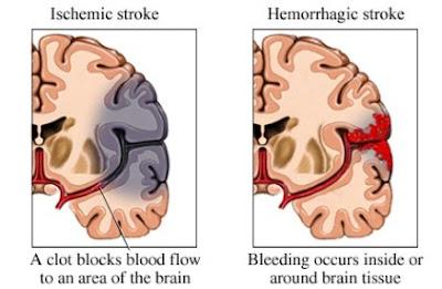 помощь при инсульте, срочная помощь при  инсульте, гемморагический инсульт, перенёс инсульт, инфаркт инсульт, острый инсульт, инсульт мозговой