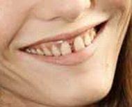 vanessa+paradis+teeth