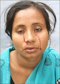 rashida khatoon crying blood miracle