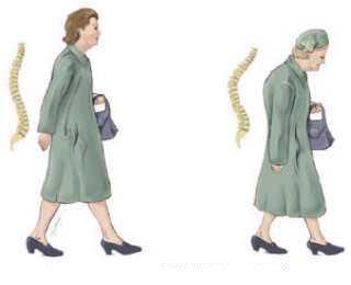 Редчайшие иллюстрации документальных результатов лечения - устранение грыж межпозвонковых дисков нехирургическим...