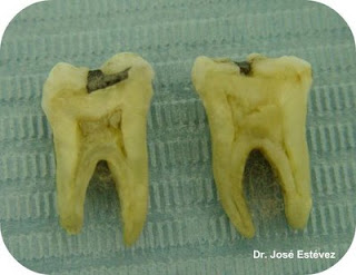 Fisura Dental, diente fraturado.