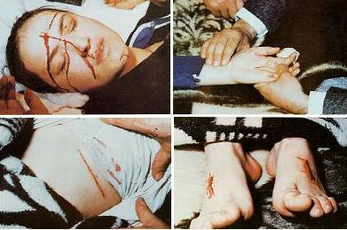 آثار الصلب Stigmata التي ظهرت على ميرنا الأخرس ، تلك الآثار التي يعتقد المسيحيون أنها ظهرت خلال صلب السيد المسيح، فتاج الشوك أدمى جبهته وكذلك أدمت المسامير المغروسة في راحتي يديه وفي قدميه. أضافة إلى ذلك ظهر جرحاً في جانب من بطنها. حدث ذلك في عيد الفصح من يوم الأحد الذي تطابق فيه عيد طائفتين هما الأرثوذكس والرومان الكاثوليك.