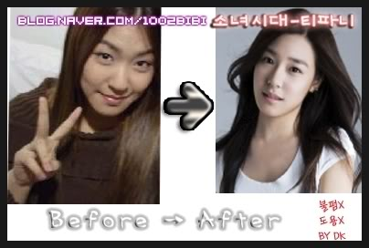snsd kim taeyeon plastic surgery before and after pictures
