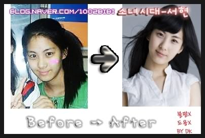 deathblog snsd before after plastic surgery