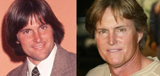 bruce+jenner+before+and+after+plastic+surgery Kim Kardashian Addresses Bruce Jenners Plastic Surgery