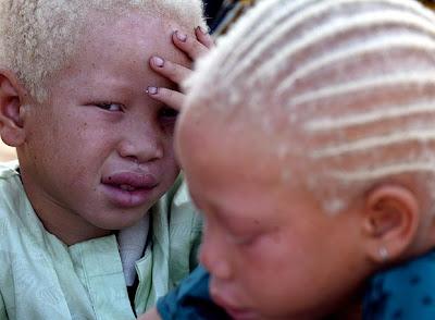 http://1.bp.blogspot.com/_VA-tl1jNWKE/SoHCbm0XA-I/AAAAAAAACuQ/9k64456AiIY/s400/albinos.jpg