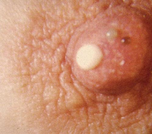 Brown Nipples During Pregnancy 38