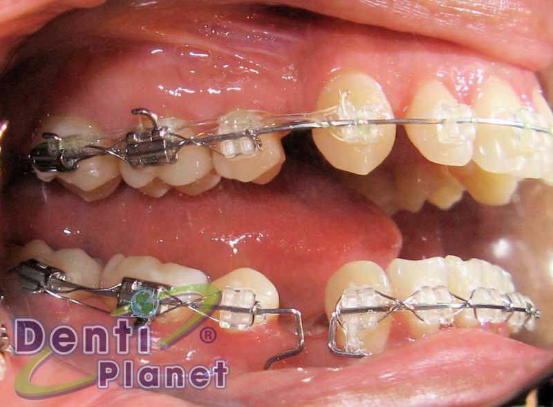 Blog ortodoncia dentiplanet en todos los casos se pueden for W de porter ortodoncia